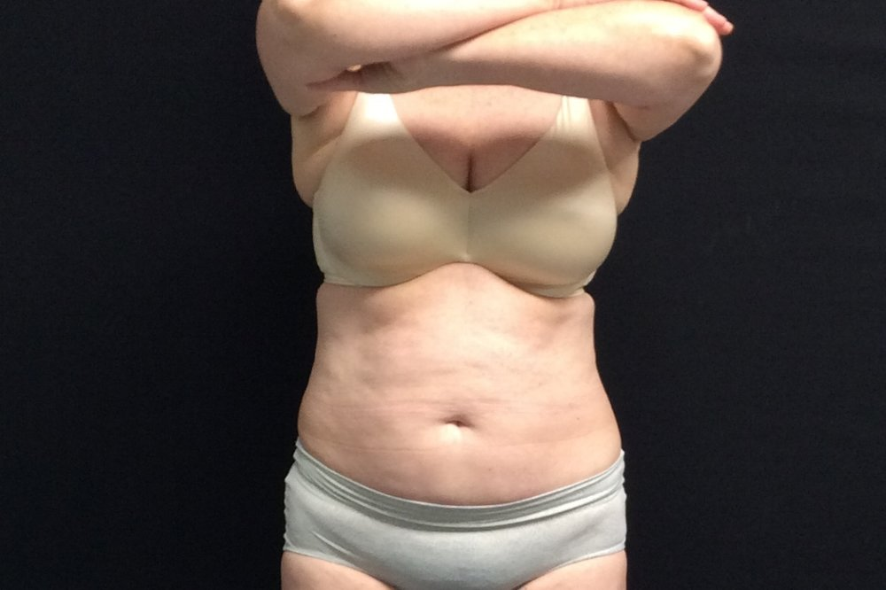Pure Luxe Patient after 1 CoolSculpting Treatment (upper/lower abdomen)