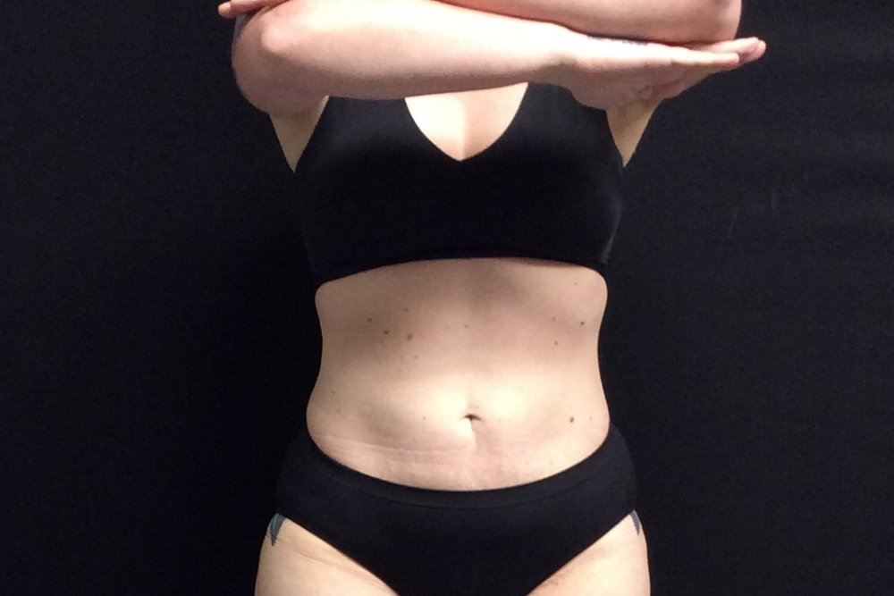 Pure Luxe Patient after 2 CoolSculpting Treatments (lower abdomen, flanks) - individual results may vary