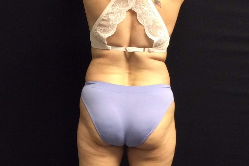 Pure Luxe Patient after 1 CoolSculpting Treatment (flanks) - individual results may vary