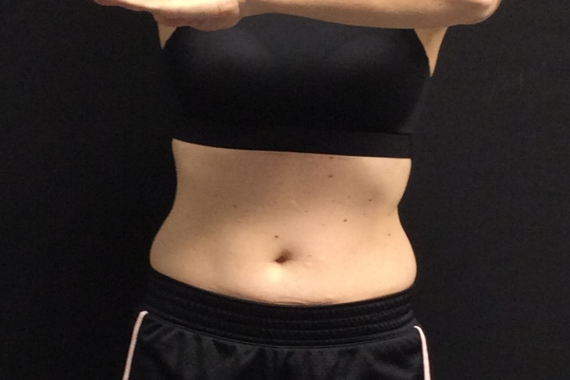 Pure Luxe Patient after CoolSculpting Treatment - individual results may vary
