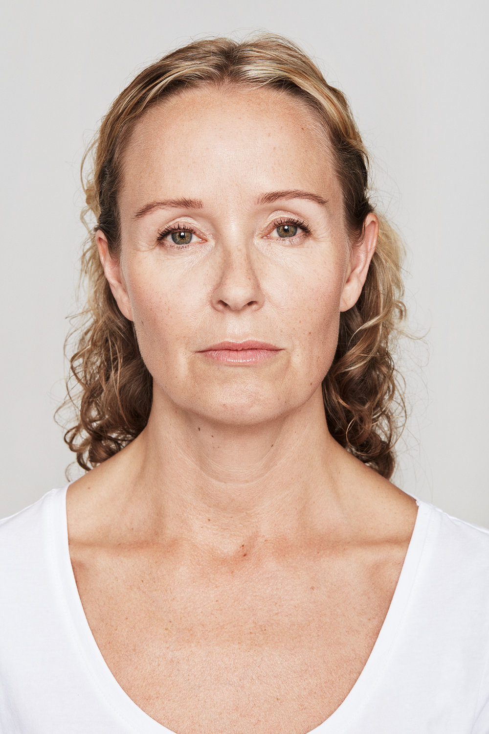 After Dysport and Restylane (Christina, 47)