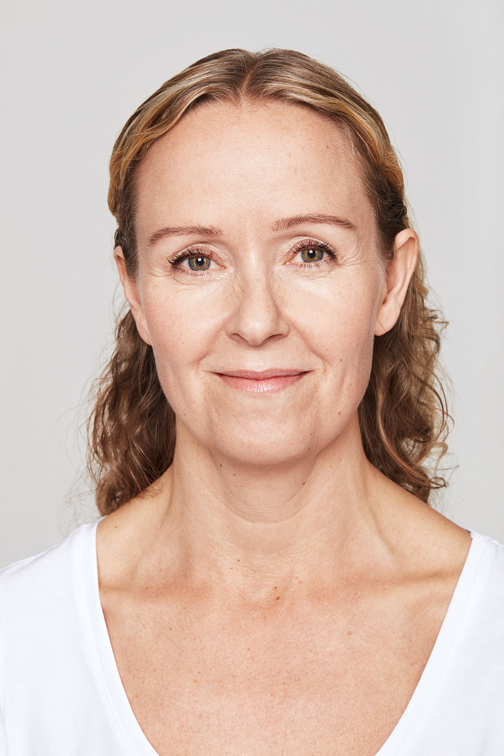 Before Dysport and Restylane (Christina, 47)