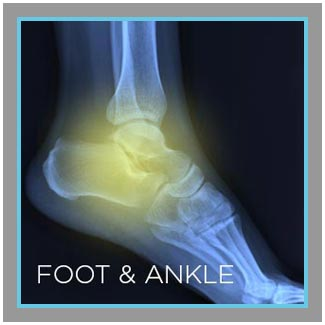 foot-ankle.jpg