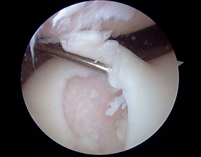 damaged-articular-cartilage.jpg