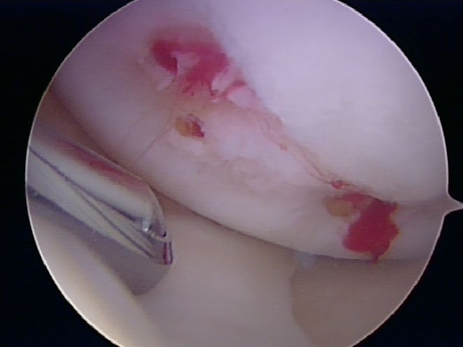 microfracture-cartilage-defect.jpg