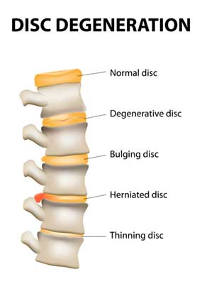 disc-diagram.jpg