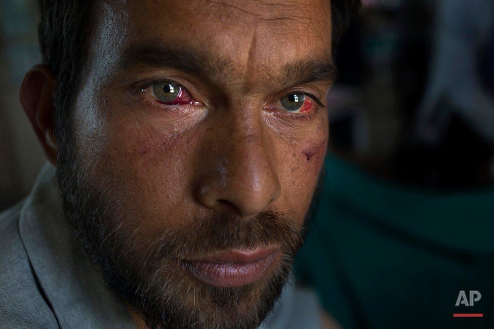 Gulzar Ahmed, allegedly beaten up by Indian soldiers who picked him along with several others at Khrew village, recovers at a local hospital in Srinagar, Indian controlled Kashmir, Thursday, Aug. 18, 2016. Residents of Khrew, in Indian-controlled Kashmir, say a young college teacher has been killed while he was in the custody of the Indian army after soldiers picked up dozens of villagers from their homes in the Himalayan region. (AP Photo/Dar Yasin)