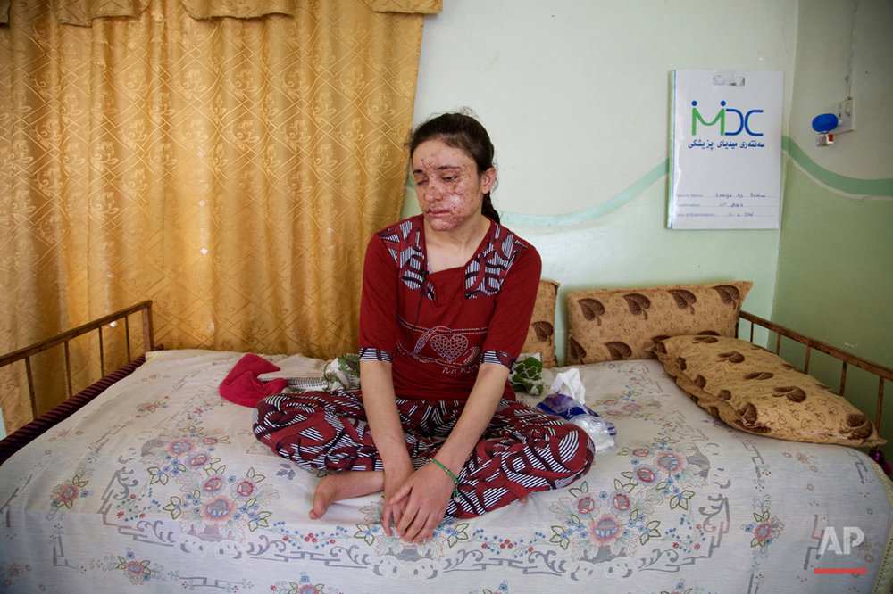 Lamiya Aji Bashar, an 18-year-old Yazidi girl who escaped her Islamic State group enslavers, talks to The Associated Press in northern Iraq in this May 5, 2016, photo. During more than a year of being passed from one militant to another, Bashar attempted to flee many times. On her fifth attempt, in March, she finally reached fighters in a Kurdish-controlled region, a safe haven for Yazidis, but only after a mine exploded, killing two girls fleeing with her and leaving Bashar's face scarred and blinding her in one eye. (AP Photo/Balint Szlanko)