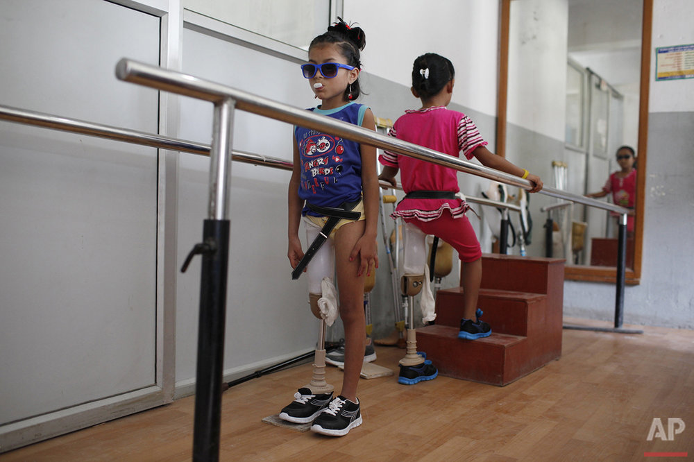 In this Oct. 16, 2015 photo, amputee victims in Nepal's massive 2015 earthquake, Nepalese girls Khendo Tamang, left, and Nirmala Pariyar, both 8, practice walking with new prosthetic legs at a clinic in Kathmandu, Nepal. Spending months together with surgeries and the following physical therapy, both girls were soon inseparable and relied on their friendship to help ease the emotional wounds. (AP Photo/Niranjan Shrestha)