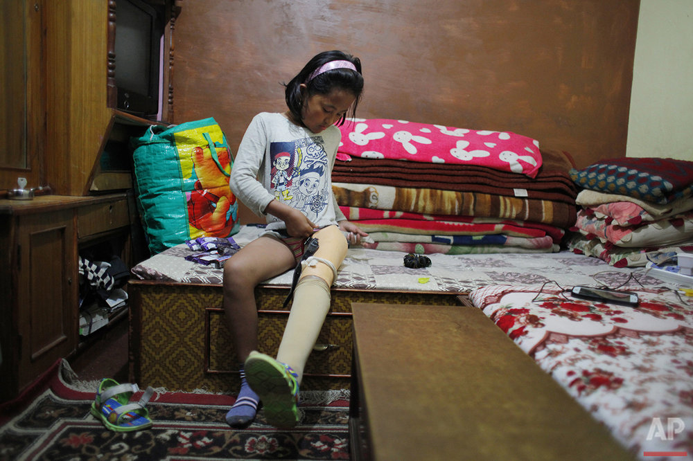 In this March 9, 2016 photo, Khendo Tamang, 8, adjusts her prosthetic leg in Kathmandu, Nepal. Khendo was in her home village, Banskharka, when Nepal's massive April 2015 earthquake stuck. Her grandmother and sister were both killed when the house they were in collapsed during the quake. Khendo was pulled with severe leg injuries from the wreckage. (AP Photo/Niranjan Shrestha)