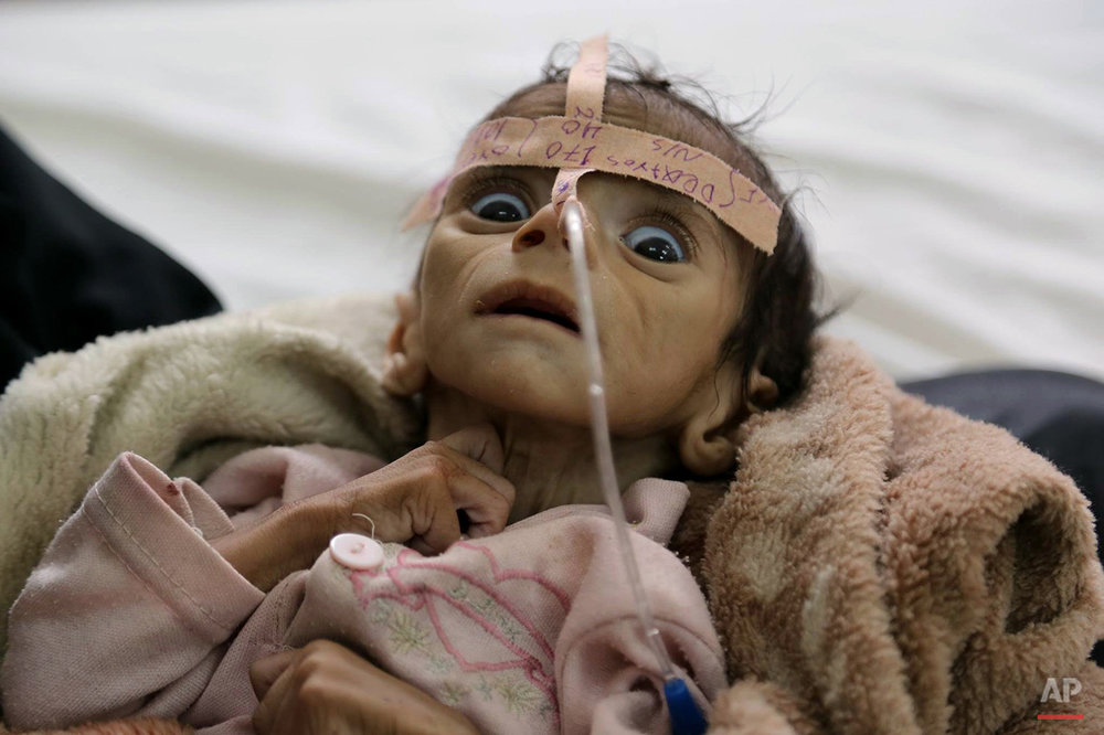 Yemen Hunger War