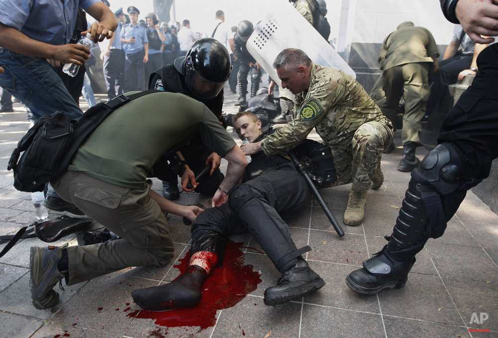 Police officers give a person medical aid after a grenade blast during clashes between protesters and police following a vote to give greater powers to the east, outside the Parliament in Kiev, Ukraine, Monday, Aug. 31, 2015. The Ukrainian parliament has given preliminary approval to a controversial constitutional amendment that would provide greater powers to separatist regions in the east. Hundreds of people gathered in front of the parliament to protest the amendment. (AP Photo/Vladimir Donsov)