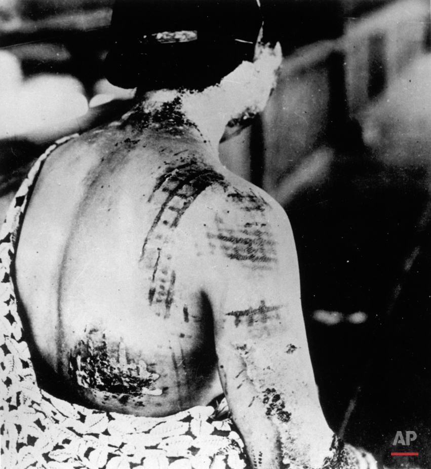 A victim of the first atomic bomb ever used in warfare is seen in September 1945, at the Ujina Branch of the First Army Hospital in Hiroshima. The thermic rays emitted by the explosion burned the pattern of this woman's kimono upon her back. (AP Photo)