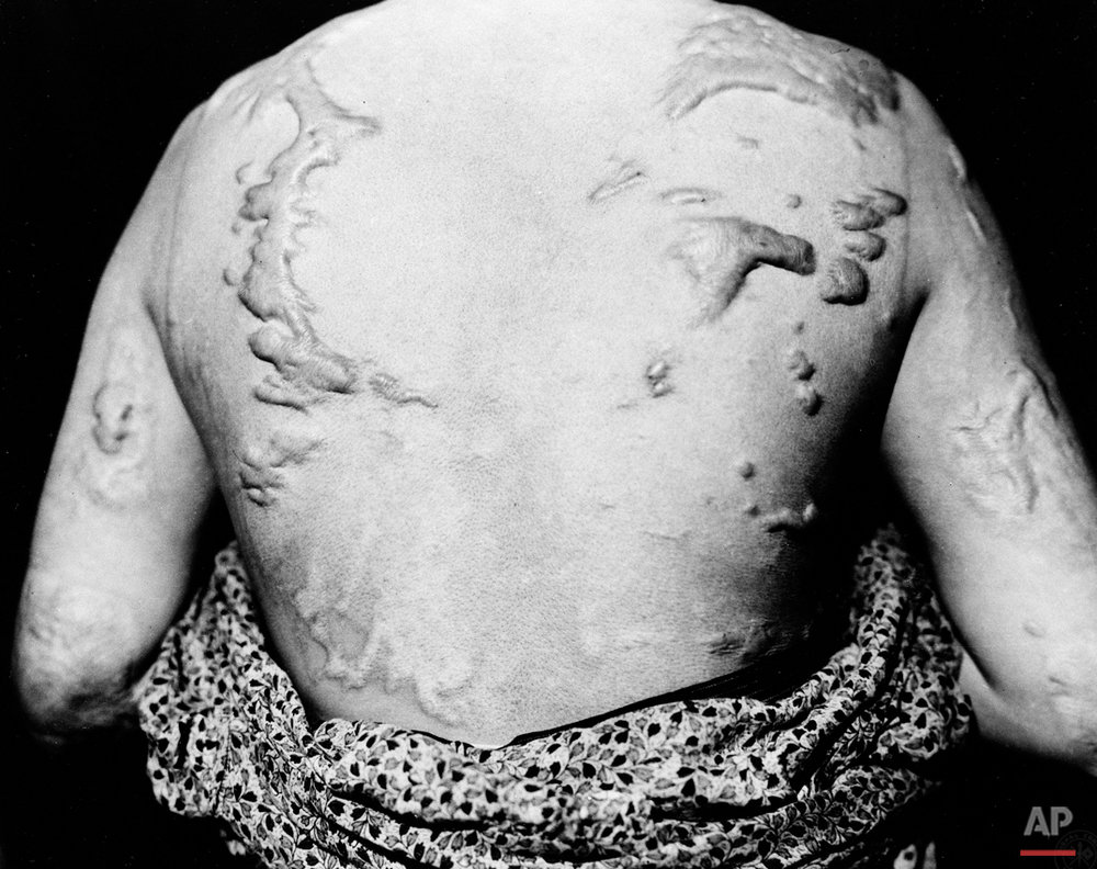 Ikimi Kikkawa shows keloid scars following the healing of burns caused by the atomic bomb dropped on Hiroshima at the end of the second World War.  She was seen at the Red Cross hospital there, June 5, 1947.  (AP Photo)