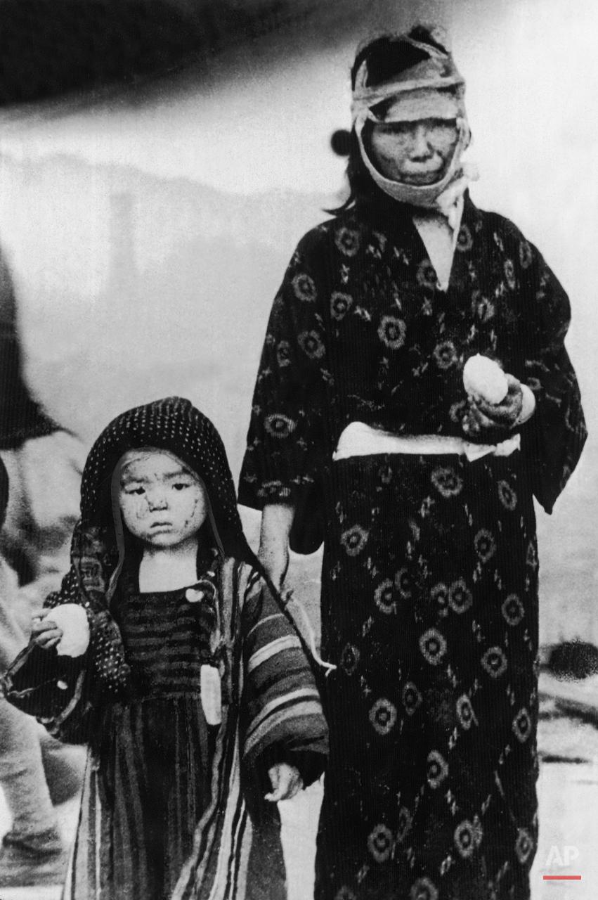 """A Japanese woman is seen with a child in traditional Japanese clothing, who survived the atomic bomb dropped on Nagasaki, in Nagasaki, Japan, August 9, 1945. Their faces are marked with burns by the heat of the explosion. Scanty food rations are given out to the suffering public. (AP Photo/Str) ---- Nach dem US-amerikanischen Atombombenabwurf auf Nagasaki am 9. August 1945. Diese Mutter und Kind, in traditoneller japanischer Kleidung, haben das Inferno ue?berlebt. Brandwunden zeichnen ihre Gesichter. Notdue?rftig wurden sie mit Nahrungsmitteln versorgt. Der US-amerikanische Bomber """"Bock?s Car"""" der Bomberkommandogruppe hatte an diesem Tag den Plutoniumsprengsatz der """"Fat Man"""" (Bombe) ue?ber der japanischen Hafenstadt abgeworfen. Radioaktivitaet wurde freigesetzt. Die Detonation loeste eine Druckwelle aus, die Gebaeude, Autos und  Menschen wegbliess. (AP Photo/Str)"""