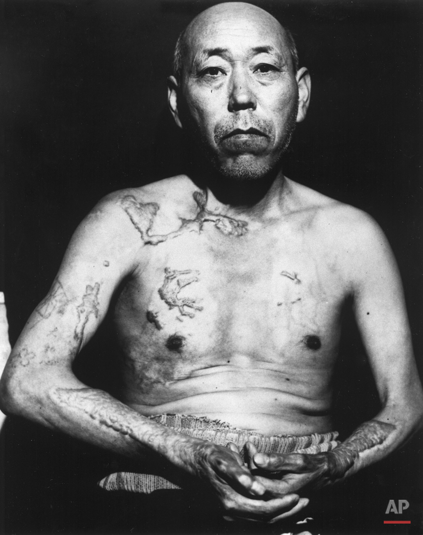 A survivor of the first atomic bomb ever used in warfare, Jinpe Teravama retains scars after healing of burns from the bomb explosion, Hiroshima, in June 1947. (AP Photo)