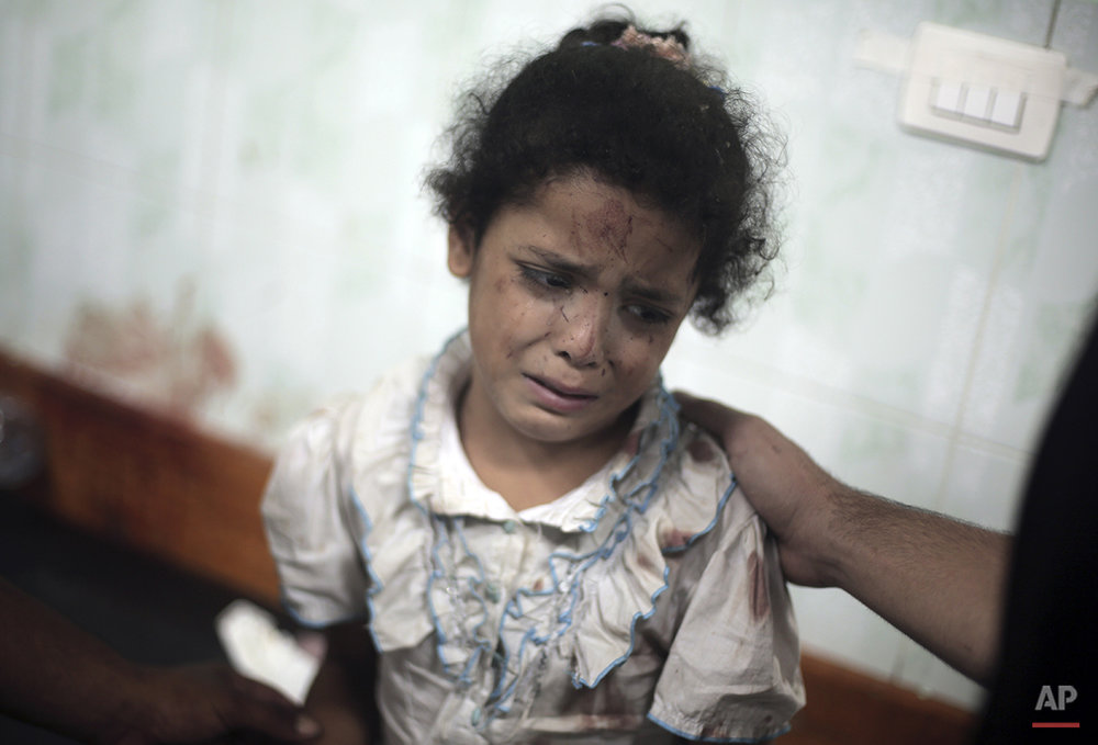 A Palestinian girl cries while receiving treatment for her injuries caused by an Israeli strike at a U.N. school in Jebaliya refugee camp, at the Kamal Adwan hospital in Beit Lahiya, northern Gaza Strip, Wednesday, July 30, 2014. Several Israeli tank shells slammed into the crowded U.N. school used as shelter for refugees in the Gaza war early on Wednesday, a Palestinian health official and a U.N. official said. (AP Photo/Khalil Hamra)