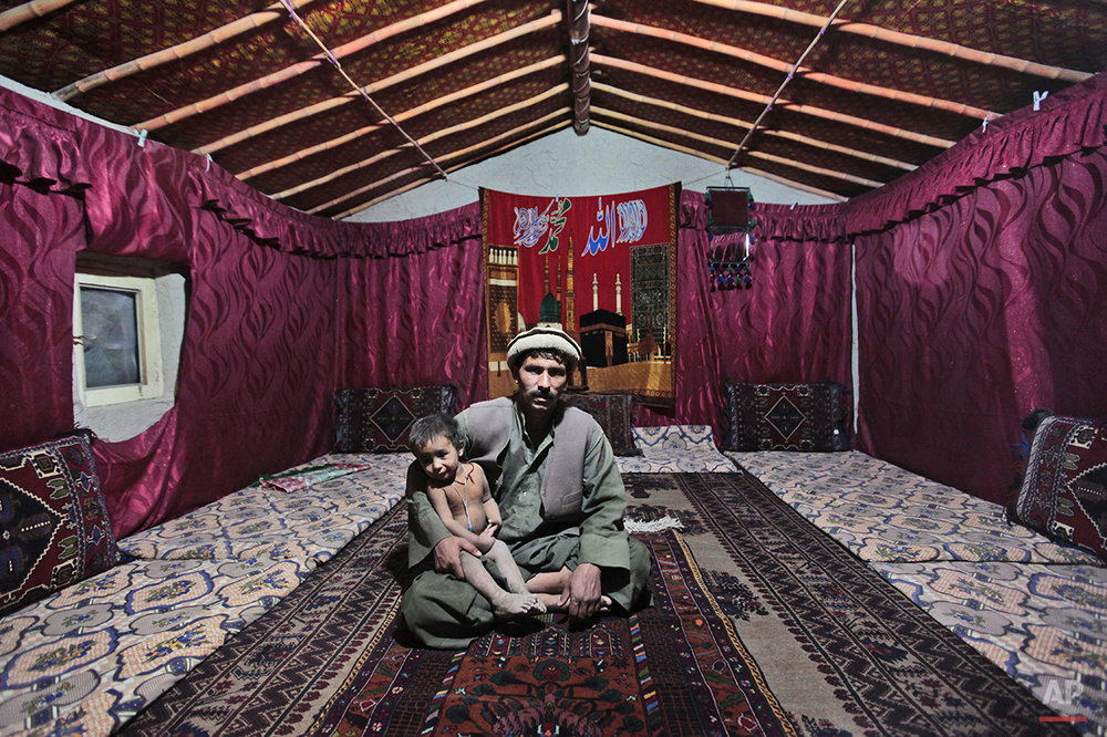 Soharab Ahmed, an Afghan man holds his son Ameer Ahmed  as they poses for picture inside their house in Kabul, Afghanistan, Tuesday, July 19, 2011. (AP Photo/Dar Yasin)