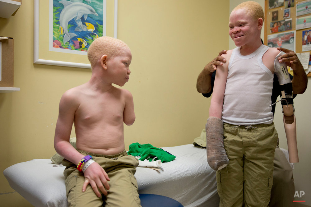 Mwigulu Magesa,12, left, and Emmanuel Rutema, 13, both of Tanzania and who have Albinism are fitted prosthetic limbs, Thursday, July 23, 2015, at Shriners Hospital for Children in Philadelphia. Magesa, Rutema, and three other children also with Albinism are in the U.S. to receive free surgery and prostheses at the Shriners Hospital. The children were attacked and dismembered in the the belief that their body parts will bring wealth. (AP Photo/Matt Rourke)