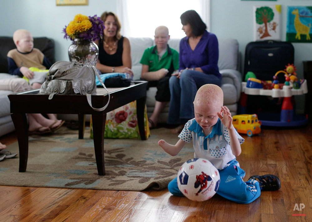 Baraka Lusambo, 5, plays with a new soccer ball in New York on Wednesday, July 1, 2015. Lusambo and four other children also with albinism are in the U.S. to receive free surgery and prostheses at the hospital. One out of every 1,400 citizens in Tanzania has albinism. (AP Photo/Julie Jacobson)