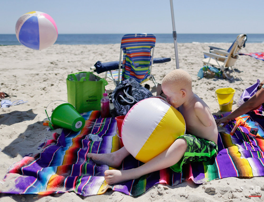 Mwigulu Magesa blows up a beach ball while playing on a beach in Long Beach Island, N.J. on Wednesday, July 22, 2015. People with the genetic condition, characterized by a lack of pigment, are often referred to in Tanzania as ghosts, or zero zero, which in Swahili signifies someone who is less than human. Witch doctors often lead brutal attacks to use albino body parts in potions they claim bring riches. (AP Photo/Julie Jacobson)
