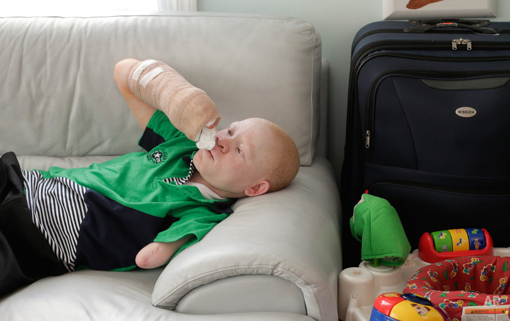 Emmanuel Rutema examines his right arm after surgery to attach one of his toes to his hand, Wednesday, July 1, 2015, in New York. Rutema and four other children also with albinism are in the U.S. to receive free surgery and prostheses at the hospital. One out of every 1,400 citizens in Tanzania has albinism. (AP Photo/Julie Jacobson)