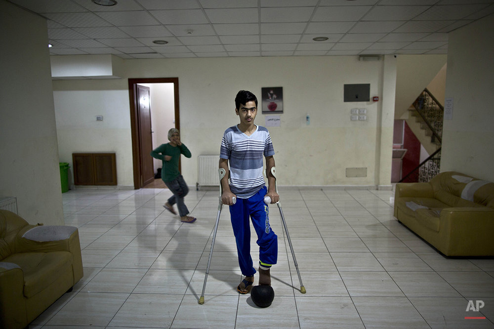 In this Monday, Aug. 24, 2015 photo, Iraqi Saif Mosa'ed, 15, who was injured in 2008 by a car bomb, poses for a picture at a hotel where he stays along with other patients of MSF Hospital for Specialized Reconstructive Surgery, run by the international charity Médecins Sans Frontières (Doctors Without Borders) in Amman, Jordan. (AP Photo/Muhammed Muheisen)