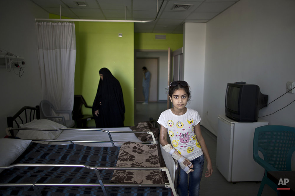 In this Tuesday, Aug. 11, 2015 photo, Iraqi girl Adyan Hazem, 11, who was injured in a car accident, poses for a picture at her room at MSF Hospital for Specialized Reconstructive Surgery in Amman, Jordan. The hospital, run by the international charity Médecins Sans Frontières (Doctors Without Borders) brings together battle-tested surgeons, counselors and physiotherapists and will eventually offer 3-D printing for hand and face prostheses. (AP Photo/Muhammed Muheisen)