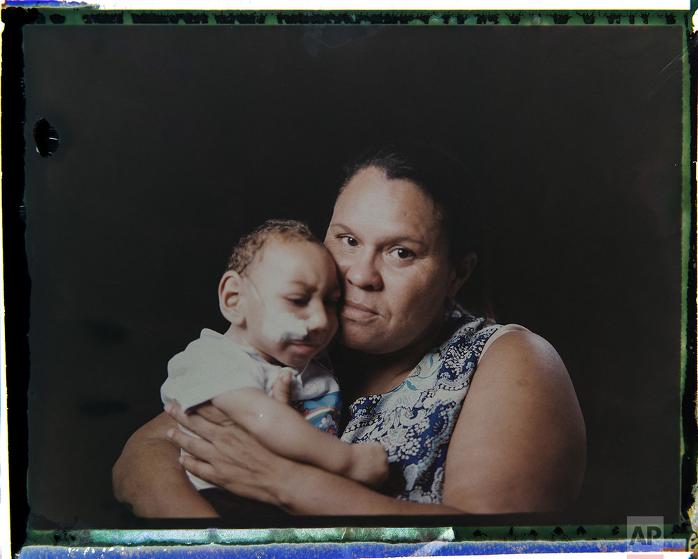 "In this Sept. 27, 2016 photo made from a negative recovered from instant film, Solange Ferreira holds her 1-year-old son Jose Wesley Campos, who was born with microcephaly, one of many serious medical problems that can be caused by congenital Zika syndrome, as they pose for a photo in Bonito, Pernambuco state, Brazil. The boy came to be known as the ""bucket baby"" because of a Dec. 23, 2015 photograph of him in a bucket filled with water to help him calm down. The image became emblematic of Brazil's Zika epidemic amid a surge of babies being born with unusually small heads in the country's northeast. (AP Photo/Felipe Dana)"