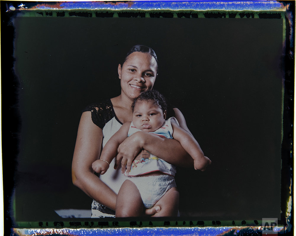 In this Sept. 29, 2016 photo made from a negative recovered from instant film, Vanessa dos Santos poses with her son, Enzo, who was born with microcephaly, one of many serious medical problems that can be caused by congenital Zika syndrome, in Recife, Pernambuco state, Brazil. Santos is one of the few mothers who lives within walking distance of a rehabilitation center. Enzo is eating well and gaining weight, but he has to take medication twice a day to control convulsions and still has difficulties with movements, especially in his hands. (AP Photo/Felipe Dana)
