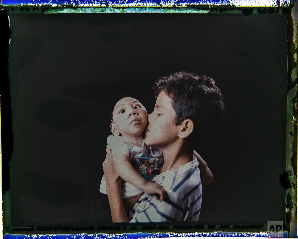 In this Sept. 27, 2016 photo made from a negative recovered from instant film, Elisson Campos poses with his 1-year-old brother, Jose Wesley Campos, who was born with microcephaly, one of many serious medical problems that can be caused by congenital Zika syndrome, in Bonito, Pernambuco state, Brazil. Elisson is very close to his baby brother and loves to hold him in his arms. (AP Photo/Felipe Dana)