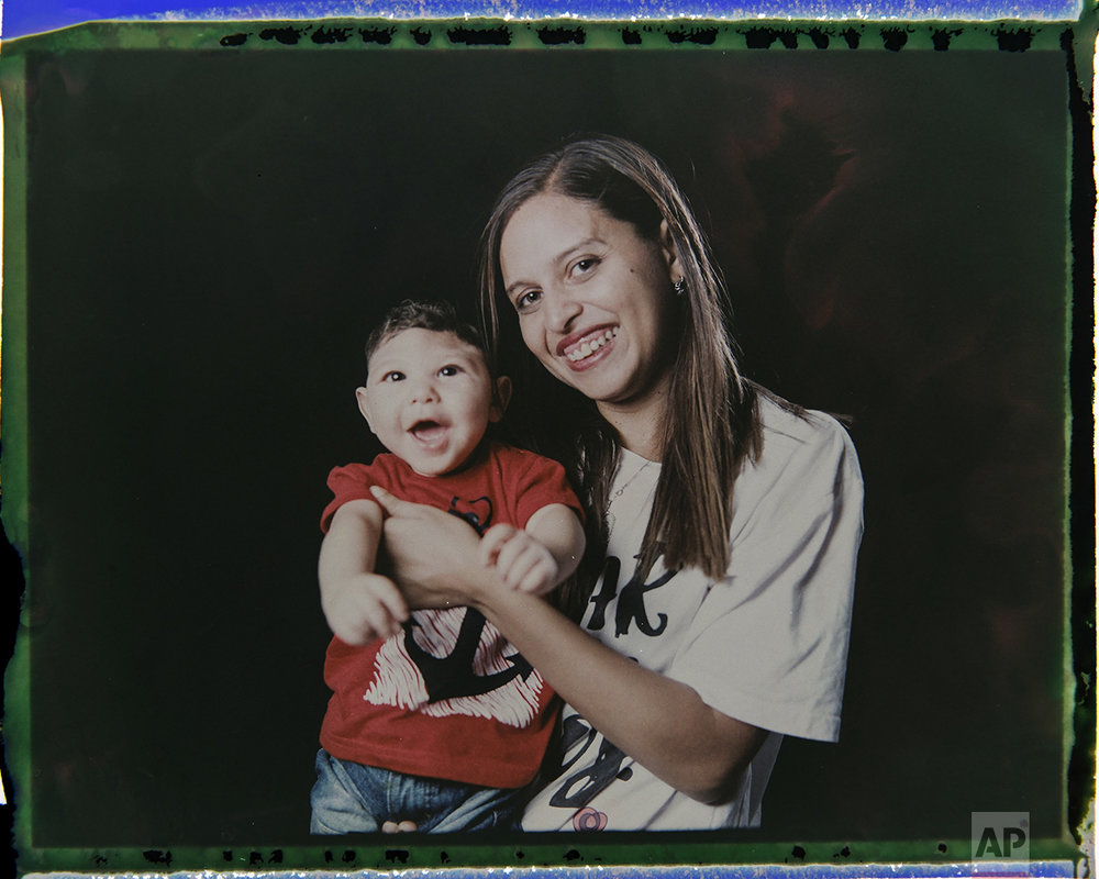 In this Sept. 29, 2016 photo made from a negative recovered from instant film, Daniele Ferreira dos Santos holds her son Juan Pedro, who was born with microcephaly, one of many serious medical problems that can be caused by congenital Zika syndrome, as they pose for a photo in Recife, Pernambuco state, Brazil. Santos is helped by her mother and older daughter, who often take turns caring for Juan Pedro. His father left the house a few weeks after he was born. (AP Photo/Felipe Dana)