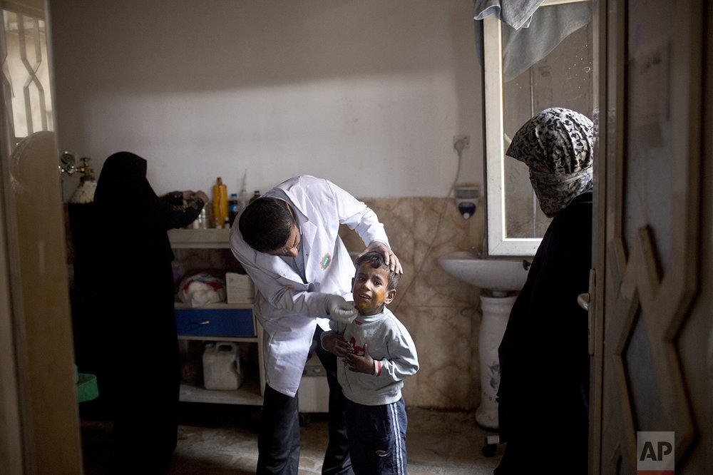 A boy gets his skin treated for sulfur burns at a hospital in Qayyarah, about 31 miles (50 km) south of Mosul, Iraq, Sunday, Oct. 23, 2016. Islamic State fighters torched a sulfur plant south of Mosul, sending a cloud of toxic fumes into the air that mingled with oil wells the militants had lit on fire to create a smoke screen. (AP Photo/Marko Drobnjakovic)