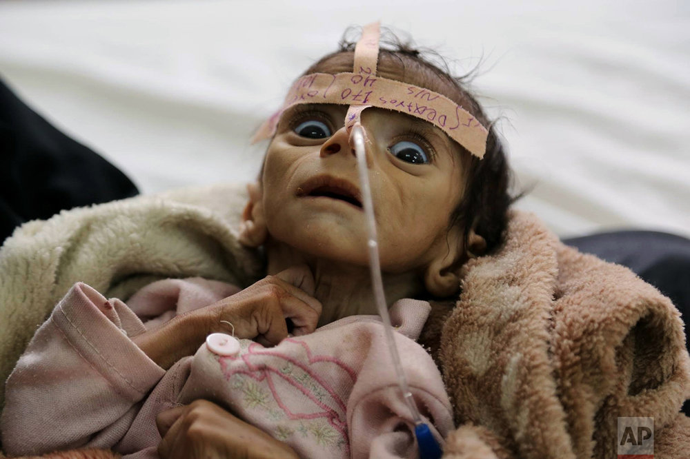 Udai Faisal, an infant who is suffering from acute malnutrition, is hospitalized at Al-Sabeen Hospital in Sanaa, Yemen, on March 22, 2016. Udai died on March 24. Hunger has been the most horrific consequence of Yemen's conflict and has spiraled since Saudi Arabia and its allies, backed by the U.S., launched a campaign of airstrikes and a naval blockade a year ago. (AP Photo/Maad al-Zikry)