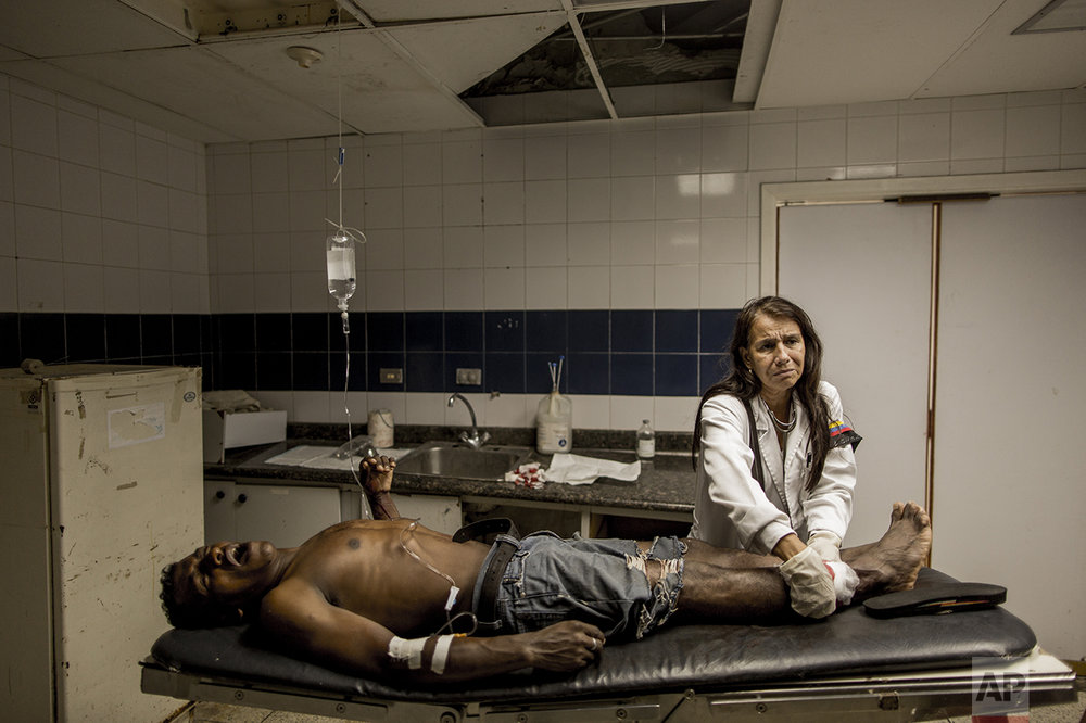 In this Nov. 3, 2016 photo, lead emergency room doctor Norka Patino treats a man who was shot in Cumana, Sucre state, Venezuela. Patino, who's been working at the hospital for over 20 years, said she has to use the same needle on various patients and that many die unnecessarily of heart attacks, diarrhea, asthma and from bacterias picked up at the hospital. The band on her arm is the Venezuelan flag accented with a black band to protest her hospital's lack of basic supplies. (AP Photo/Rodrigo Abd)
