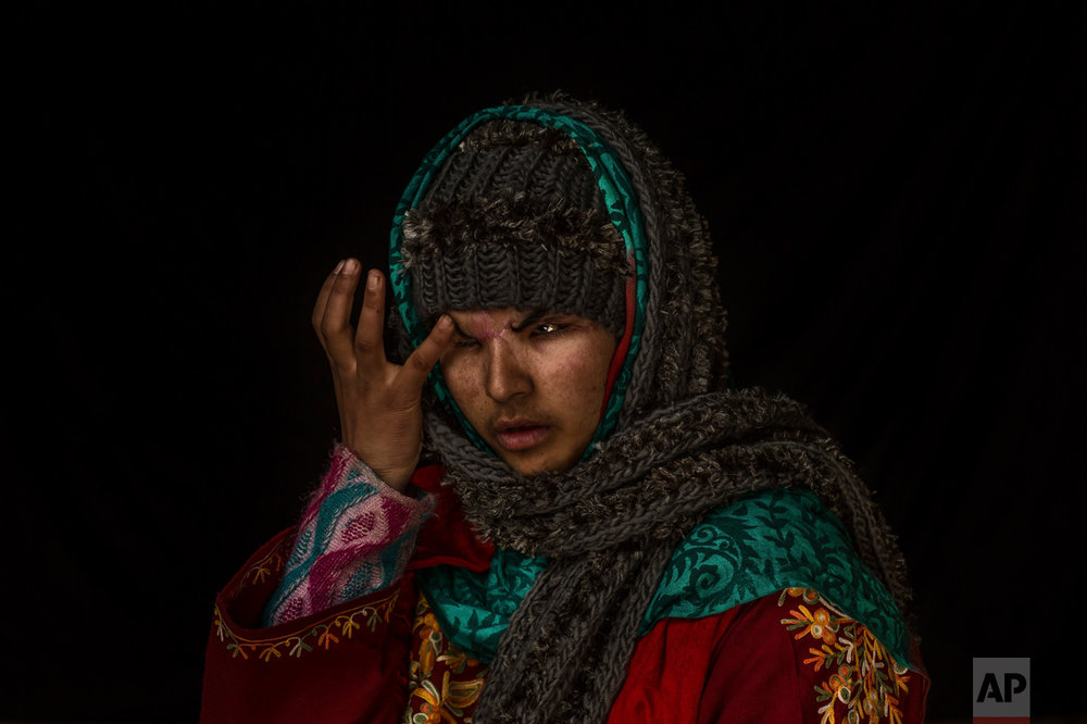 "In this Nov. 29, 2016 photo, Insha Mushtaq Malik poses for a portrait inside her home in Sedow, south Kashmir. Insha says she was standing by the window of her village home watching protesters and troops skirmish when more than 100 pellets hit her face, ""Everything looks dark and black."" Five months after she lost her eyes. Malik is still learning how to deal with her loss, both emotionally and practically. (AP Photo/Bernat Armangue)"