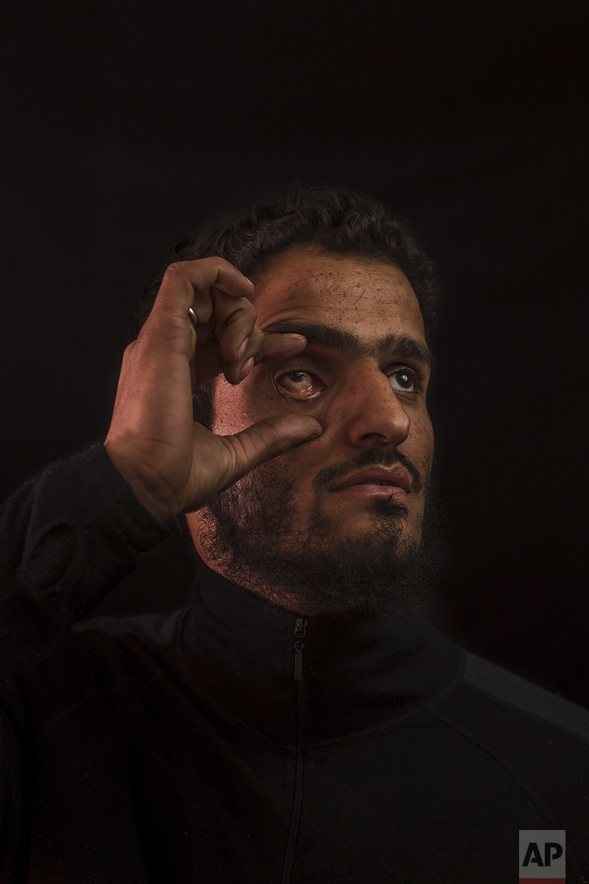 In this Nov. 29, 2016 photo, Aamir Ashraf Hajam, 25, poses for a portrait in a village near Baramulla, Indian-controlled Kashmir. Aamir lost his right eye six years ago after India security forces used a shotgun loaded with metal pellets. Health officials say that in the past five months more than 6,000 people, mostly young men, have been injured by shotgun pellets, including hundreds blinded in one or both eyes. (AP Photo/Bernat Armangue)