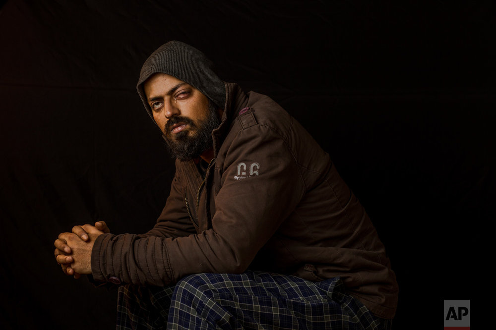 "In this Dec. 1, 2016 photo, Photojournalist Xuhaib Maqbool, 30, poses for a portrait in Srinagar, Indian-controlled Kashmir. Xuhaib ended up losing vision in his left eye as he shot images of protesters chanting anti-India slogans and demanding ""azadi"" or freedom from Indian rule. He says he clearly raised his camera to show the soldier who shot at him that he was not a protester. (AP Photo/Bernat Armangue)"
