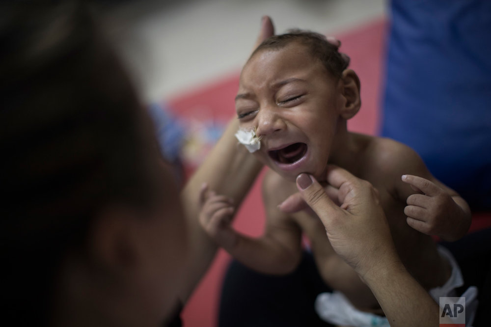 In this Sept. 28, 2016 photo, one-year-old Jose Wesley Campos, diagnosed with microcephaly linked to the Zika virus, cries during a physical therapy session at the AACD rehabilitation center in Recife, Brazil. Breathing problems make his cries sound like gargling, and his legs stiffen when he is picked up. A year after a spike in the number of newborns with the defect known as microcephaly, doctors and researchers have seen many of the babies develop swallowing difficulties, epileptic seizures and vision and hearing problems. (AP Photo/Felipe Dana)