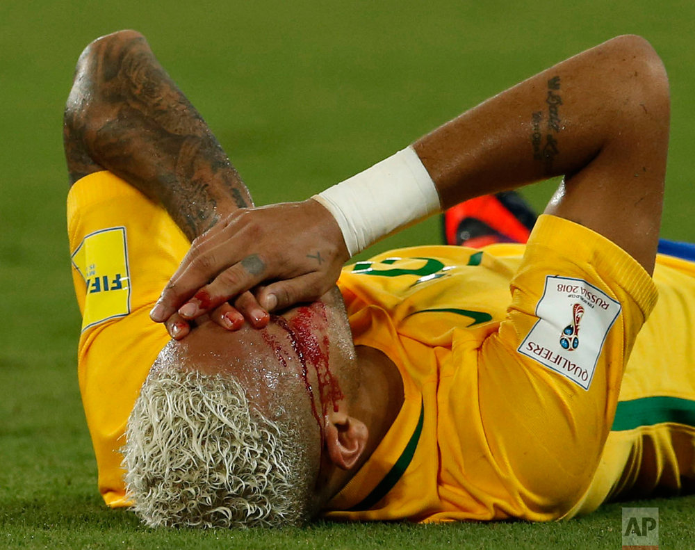 In this Thursday, Oct. 6, 2016 photo, Brazil's Neymar holds his bleeding face after a rough play during a 2018 World Cup qualifying soccer match against Bolivia in Natal, Brazil. Neymar sat on the bench the second half of the game. (AP Photo/Leo Correa)