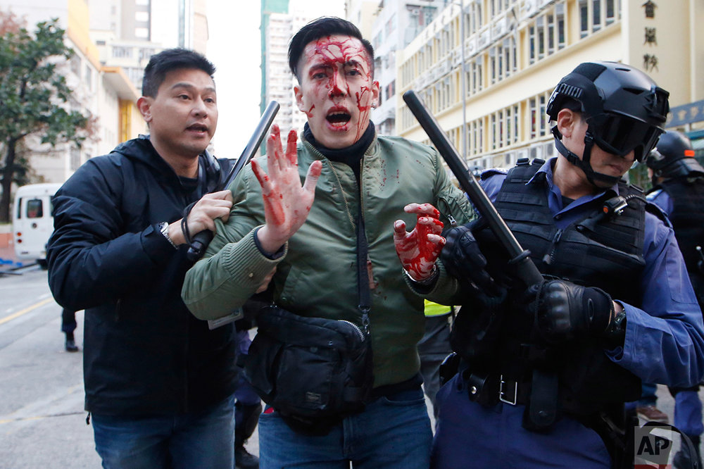 A man is taken away by police on a street in Mongkok district of Hong Kong, Tuesday, Feb. 9, 2016. (AP Photo/Kin Cheung)