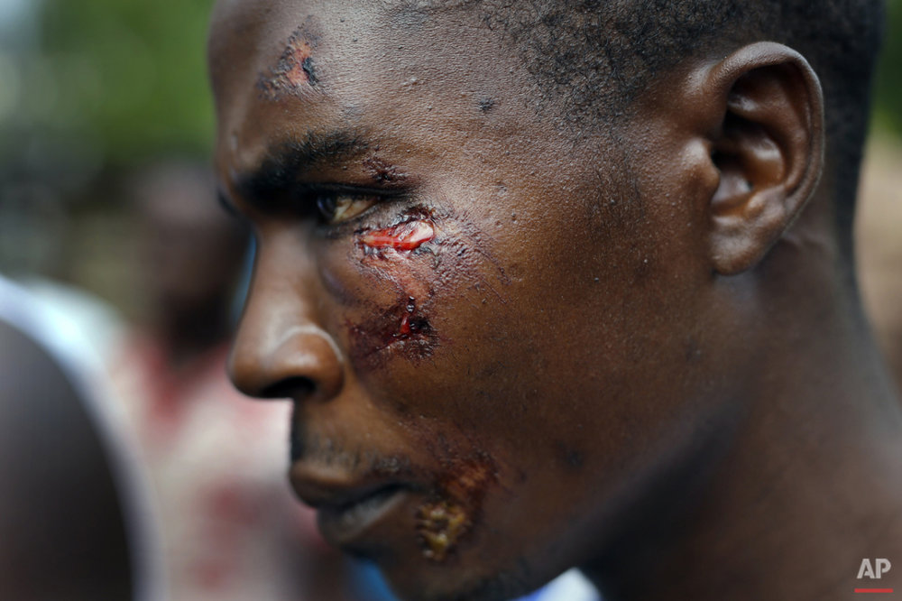 Jafeh Hakizimana shows his wounds in the rural Bujumbura village of Kamesa, Burundi, Monday May 18, 2015. Hakizimana is one of three wounded during an attack of his village by Imbonerakure  pro-government militias. (AP Photo/Jerome Delay)