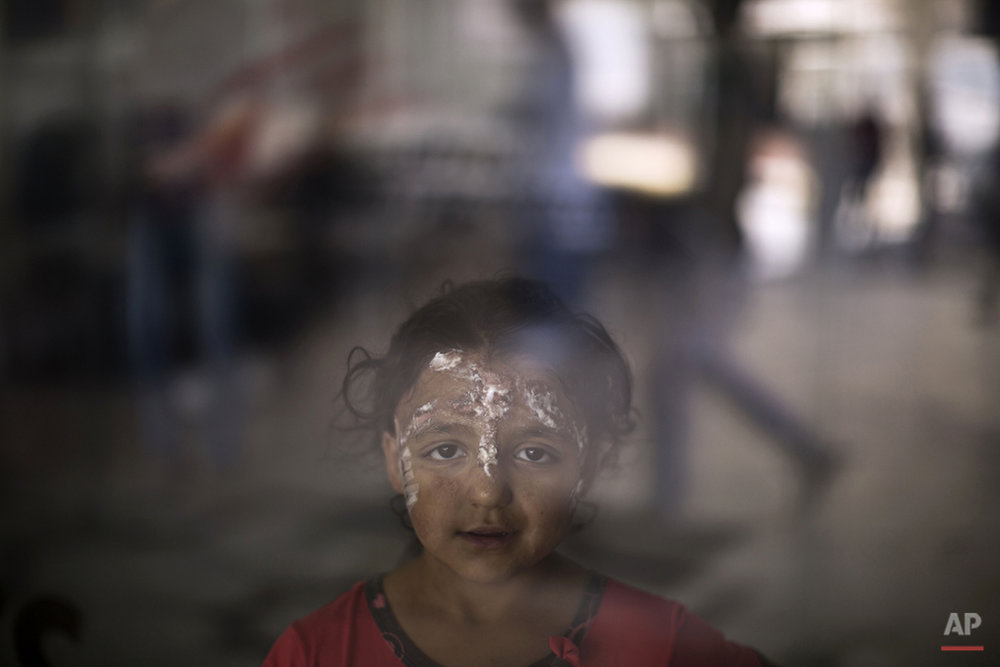 "In this Monday, Aug. 17, 2015 photo, Syrian girl Rahaf Kaddour, 5, who was burnt in an explosion that hit her home, poses for a picture at MSF Hospital for Specialized Reconstructive Surgery in Amman, Jordan. In Syria alone, more than 1 million have been wounded in the war since 2011, the World Health Organization recently estimated. ""One hospital is not enough,"" says Marc Schakal, head of  Médecins Sans Frontières (Doctors Without Borders) in Jordan. (AP Photo/Muhammed Muheisen)"
