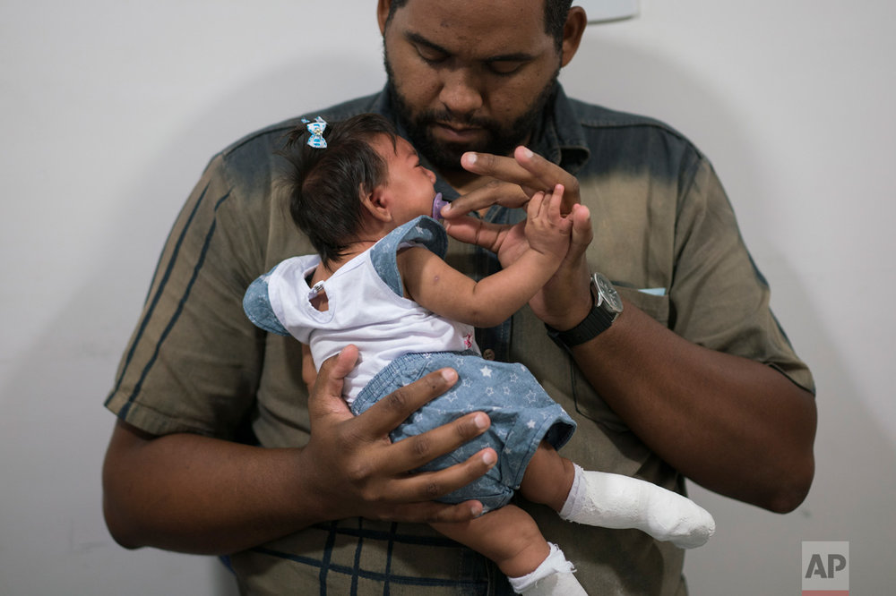 Laurinaldo Alves adjusts the pacifier of his daughter Luana Vitoria, who suffers from microcephaly, during a physical stimulation session at the Altino Ventura foundation, a treatment center that provides free health care, in Recife, Pernambuco state, Brazil, Thursday, Feb. 4, 2016. Brazil is in the midst of a Zika outbreak and authorities say they have also detected a spike in cases of microcephaly in newborn children, but the link between Zika and microcephaly is as yet unproven. (AP Photo/Felipe Dana)