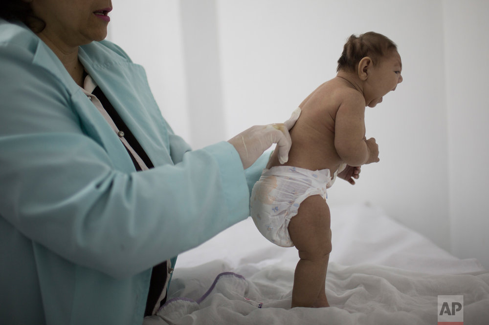Lara, who is less then three months old and was born with microcephaly, is examined by a neurologist at the Pedro I hospital in Campina Grande, Paraiba state, Brazil, Friday, Feb. 12, 2016. Alarm in recent months over the Zika virus, which many researchers believe can cause microcephaly in the fetuses of pregnant women, has prompted calls, both inside and outside Brazil, to loosen a near-ban on abortion in the world's most populous Catholic country. But the pro-choice push is creating a backlash, particularly among the families of disabled children.  (AP Photo/Felipe Dana)