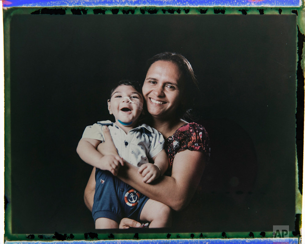 In this Sept. 29, 2016 photo made from a negative recovered from instant film, Rozilene Ferreira poses with her one-year-old son, Arthur Conceicao, who was born with microcephaly, one of many serious medical problems that can be caused by congenital Zika syndrome, in Recife, Pernambuco state, Brazil. A year after a spike in the number of newborns with the defect known as microcephaly, Brazilian doctors and researchers have seen many of the babies develop swallowing difficulties, epileptic seizures and vision and hearing problems. (AP Photo/Felipe Dana)