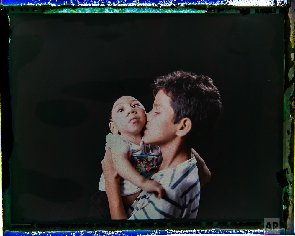 In this Sept. 27, 2016 photo made from a negative recovered from instant film, Elisson Campos poses with his one-year-old brother, Jose Wesley Campos, who was born with microcephaly, one of many serious medical problems that can be caused by congenital Zika syndrome, in Bonito, Pernambuco state, Brazil. Elisson is very close to his baby brother and loves to hold him in his arms. (AP Photo/Felipe Dana)