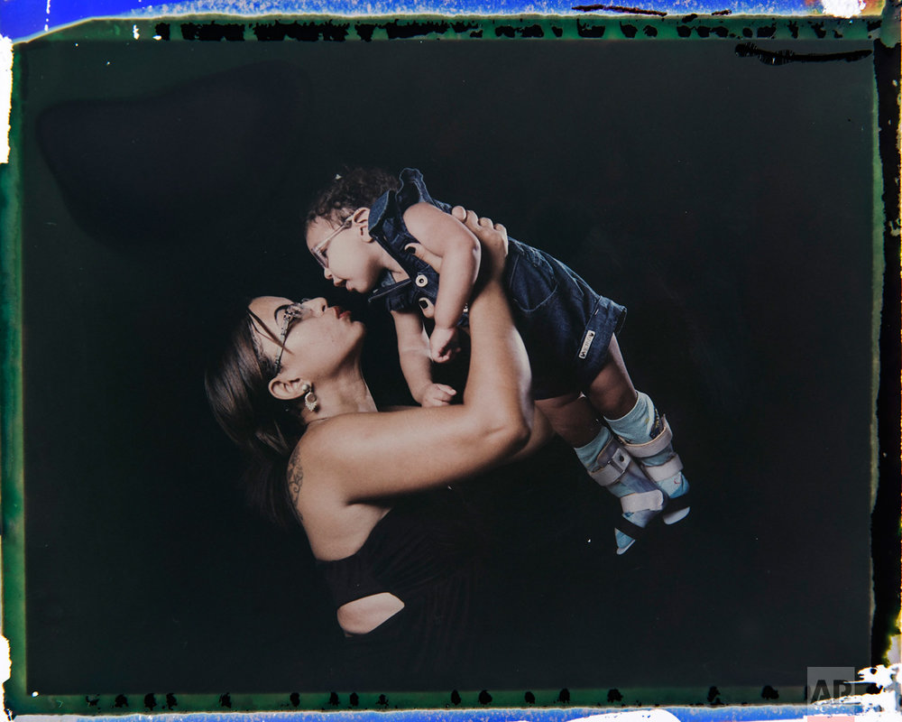 In this Sept. 29, 2016 photo made from a negative recovered from instant film, Rosana Alves holds her daughter Luana, who was born with microcephaly, one of many serious medical problems that can be caused by congenital Zika syndrome, as they pose for a photo in Recife, Pernambuco state, Brazil. Alves has three daughters and has left work to take care of Luana, who is equipped with specially designed leg braces to help position her feet. (AP Photo/Felipe Dana)