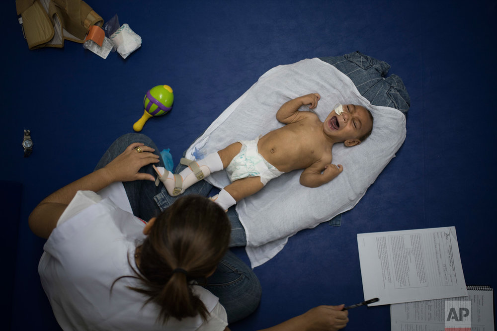 In this Sept. 30, 2016 photo, 1-year-old Jose Wesley Campos, who was born with microcephaly, cries during his physical therapy session at the AACD rehabilitation center in Recife, Brazil. Jose is like a newborn. He is slow to follow objects with his crossed eyes. His head is unsteady when he tries to hold it up, and he weighs less than 13 pounds, far below the 22 pounds that is average for a baby his age. (AP Photo/Felipe Dana)