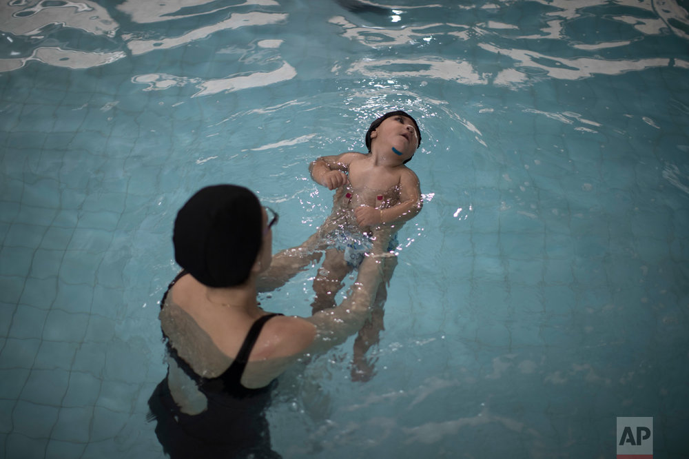 This Sept. 28, 2016 photo shows one-year-old Arthur Conceicao, who was born with microcephaly, during his swimming pool physical therapy session at AACD rehabilitation center in Recife, Brazil. While scientists probe how Zika attacks fetuses in the womb, babies like Arthur born with brain damage caused by the virus are suffering numerous health problems such as trouble swallowing, worsening epileptic seizures and difficulty breathing. (AP Photo/Felipe Dana)